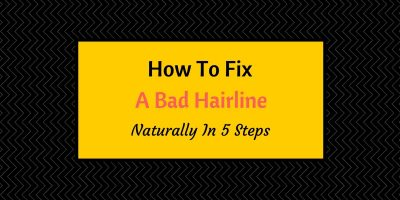 how to fix a bad hairline naturally