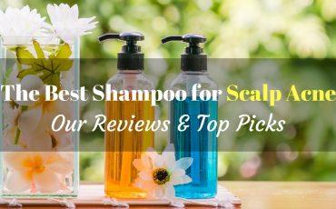 best shampoo for scalp acne