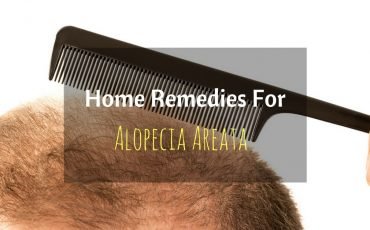 Home Remedies For Alopecia Areata