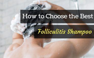best folliculitis shampoo