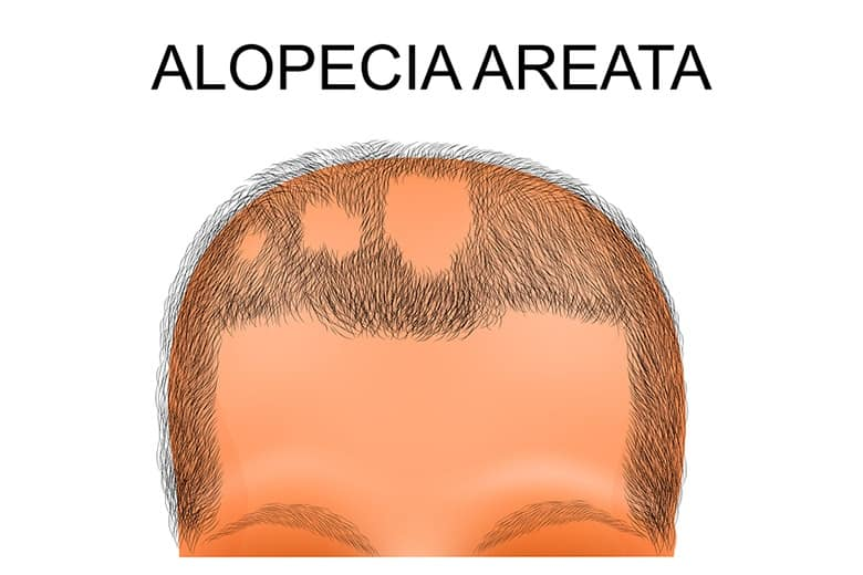 How To Make Home Remedies For Alopecia Areata